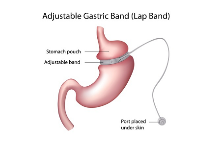 Gastric Band Surgery