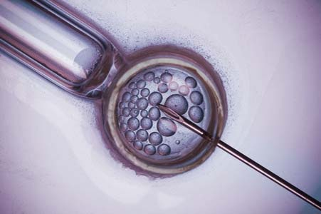 IVF and ART remedies and complaints